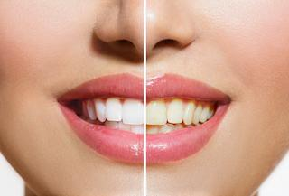 Teeth Whitening | Atlantis Dental