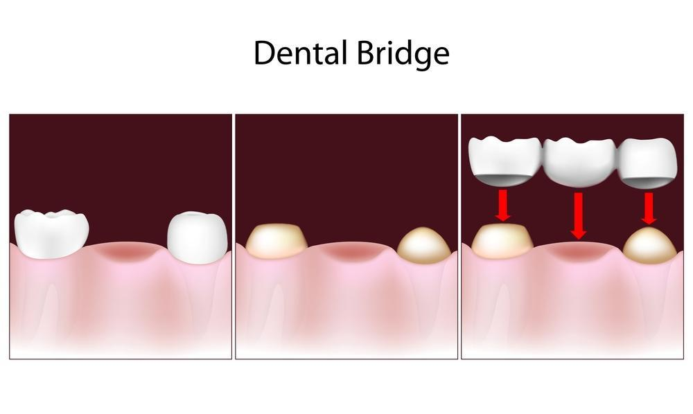 bridge diagram | dental bridge boise id