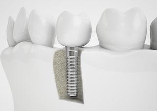 Dental Implant | Atlantis Dental Care