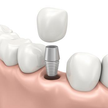 dental implant diagram | dentist 83713