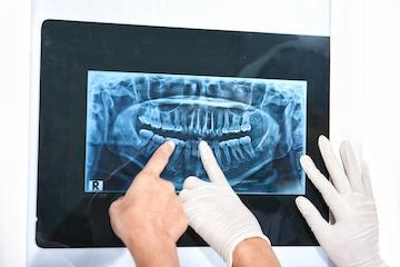 tooth extraction | boise id