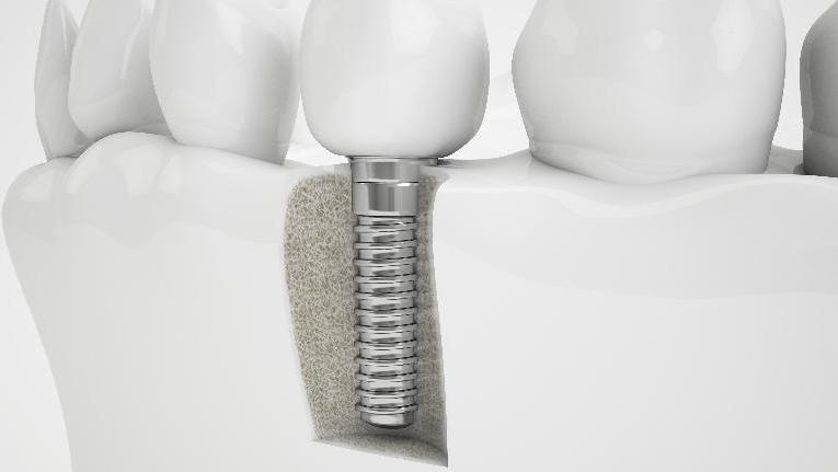 Dental Implants | Boise ID Dentist