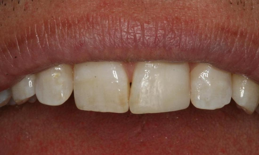 image of the same tooth after bonding with composite resin | Boise ID