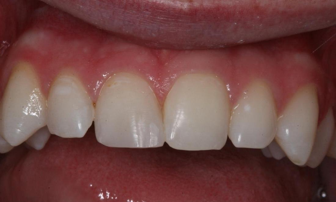 Image of the same tooth fixed after dental bonding | Boise ID