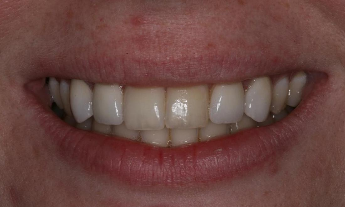 Using Veneers to Give More Even Smile