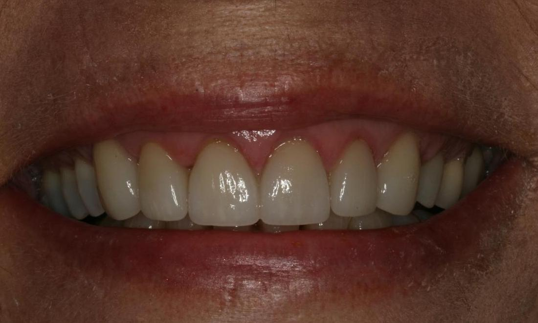 Image of the same teeth after a smile correction | Boise ID