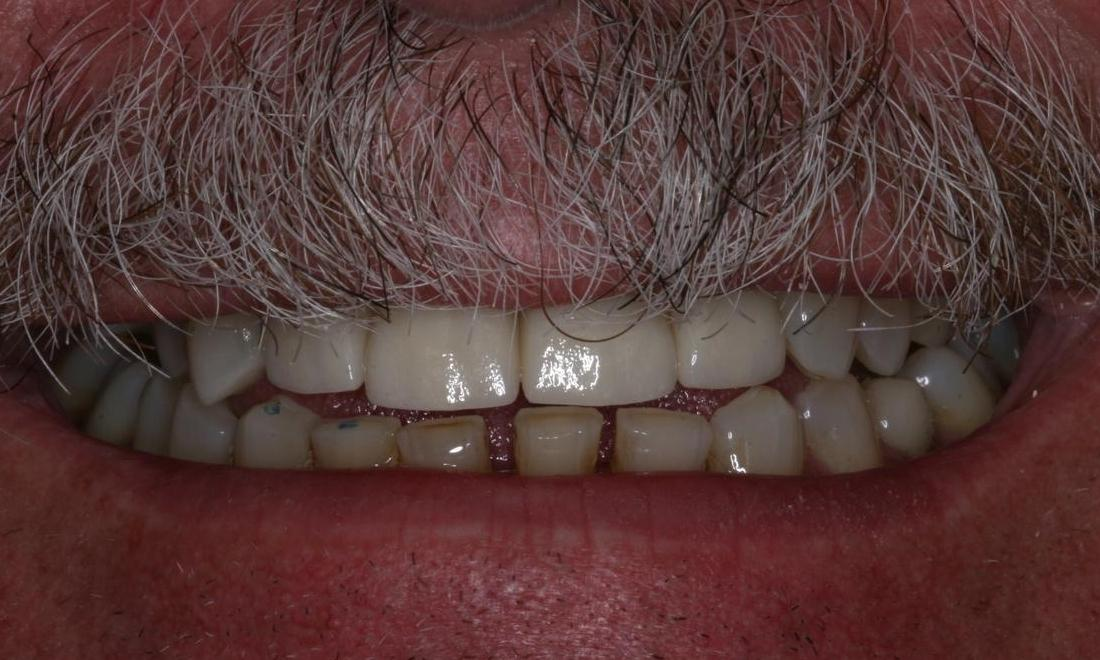 Image of the same smile after CEREC crowns | Boise ID