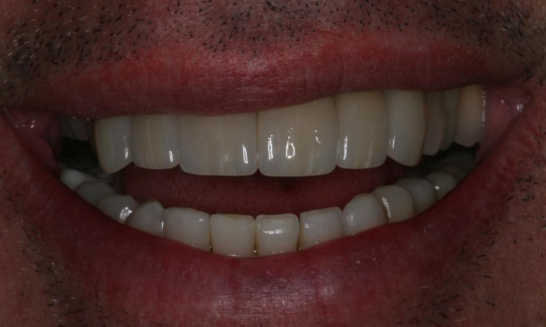 Fixing a Discolored, Decaying Smile