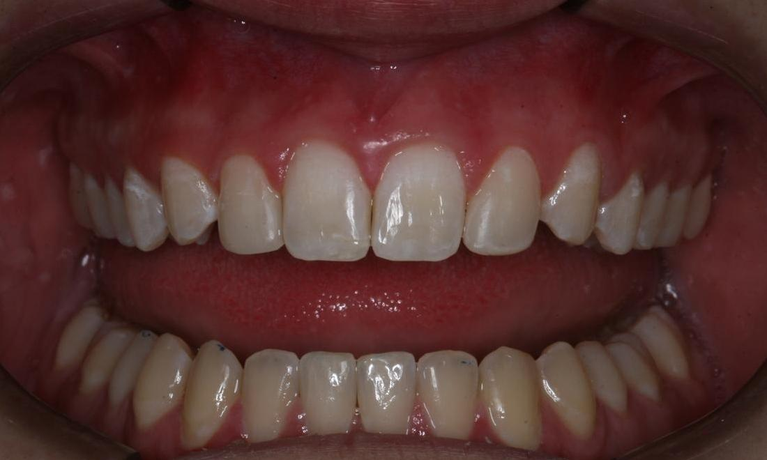 Image of the same lateral incisors after dental bonding | Boise ID