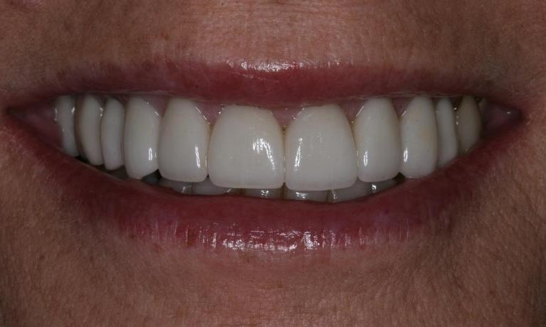 Full Mouth Makeover Gives Perfect Smile