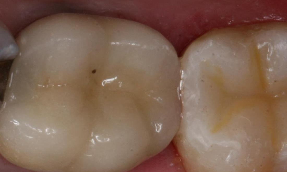 image of the same teeth after tooth-colored fillings | Boise ID