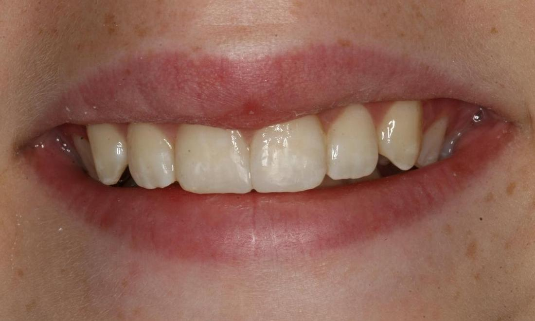 Image of the same tooth after dental bonding | Boise ID