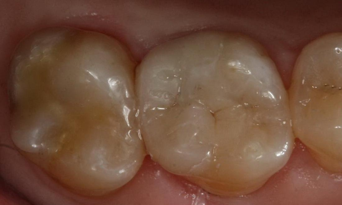 image of the same teeth after tooth colored fillings | Boise ID