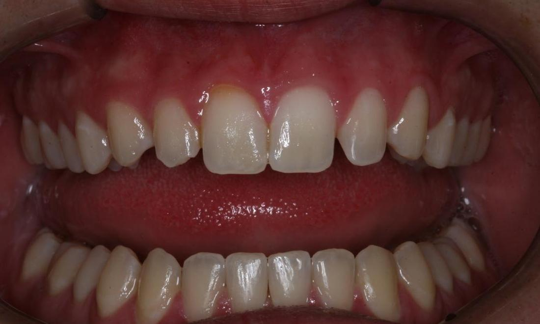 image of small lateral incisors | Boise ID