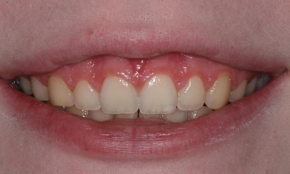 Image of a smile with over-exposed gums | Boise ID
