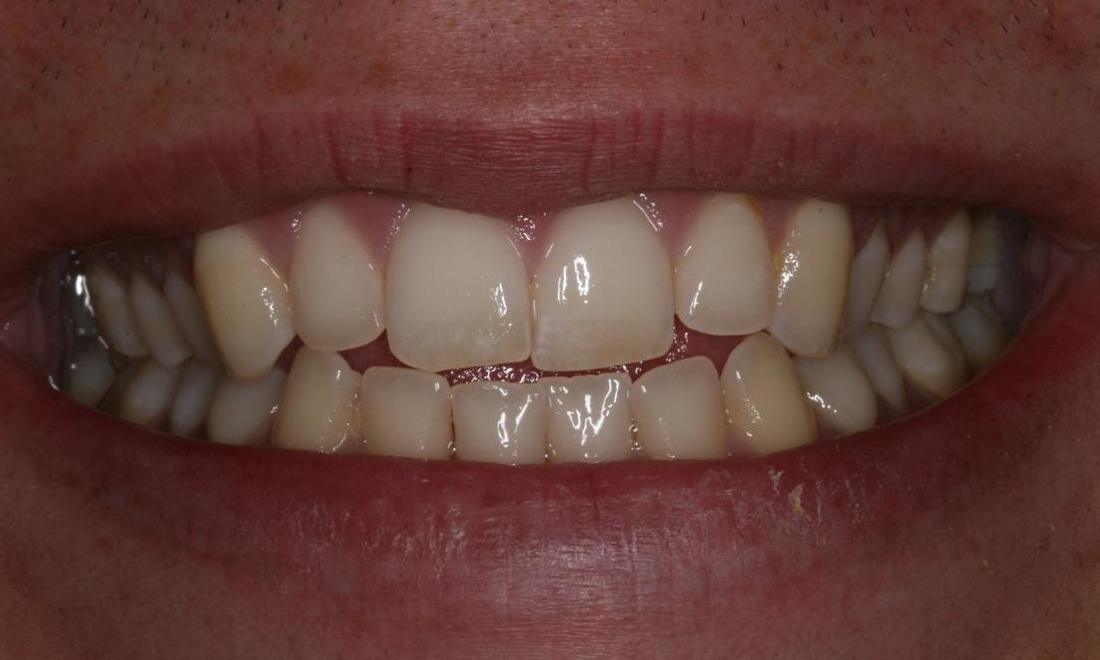 invisalign before image | boise id