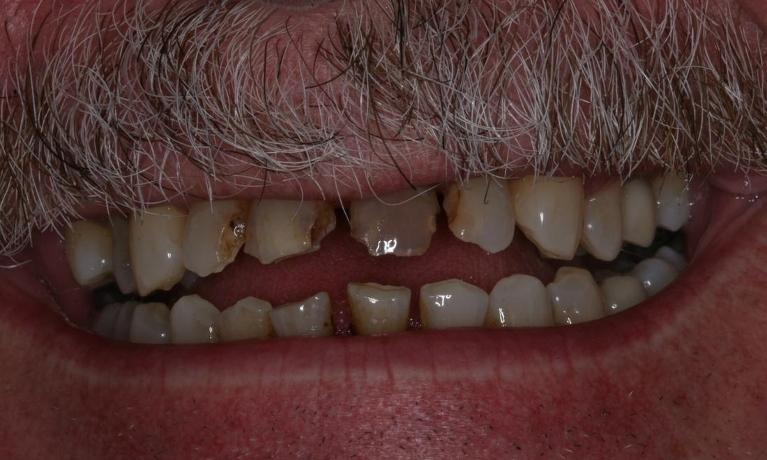 image of neglected teeth | Boise ID
