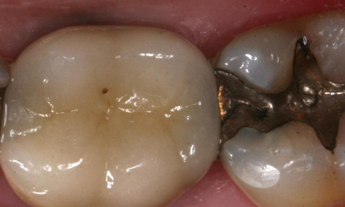 image of teeth with silver fillings | Boise ID