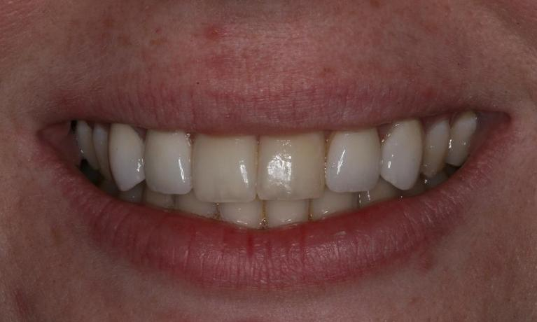 Using-Veneers-to-Give-More-Even-Smile-After-Image