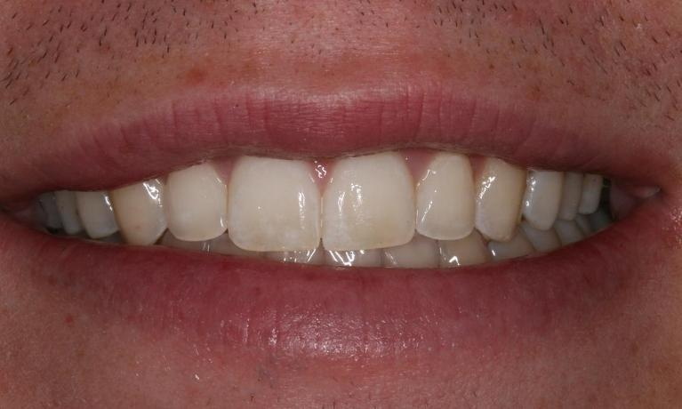Invisalign-to-Fix-Crowded-Teeth-After-Image