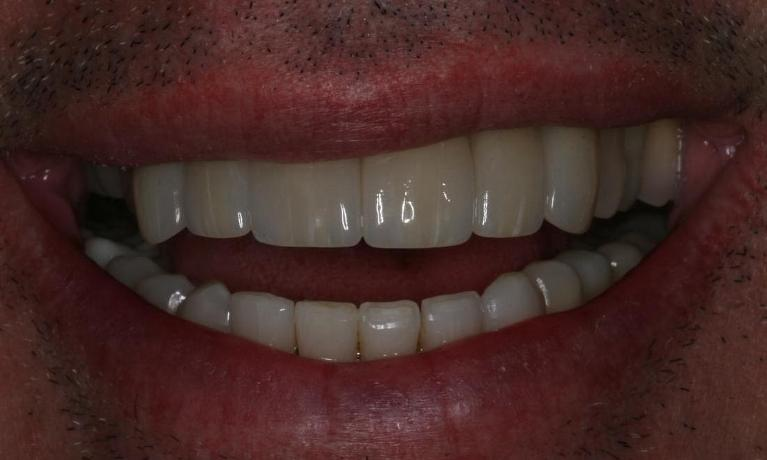Fixing-a-Discolored-Decaying-Smile-After-Image