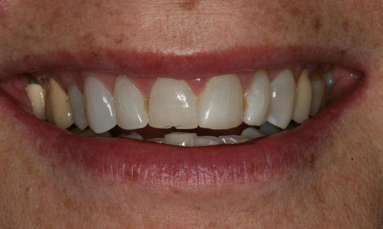 Full-Mouth-Makeover-Gives-Perfect-Smile-Before-Image