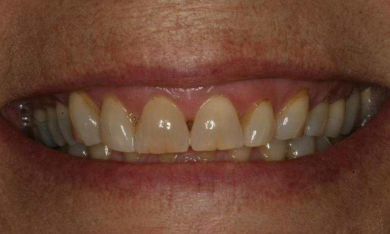 Porcelain-eMax-Crowns-Before-Image