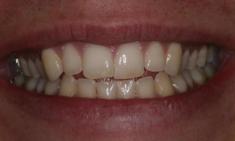 Invisalign-to-Fix-Crowded-Teeth-Before-Image