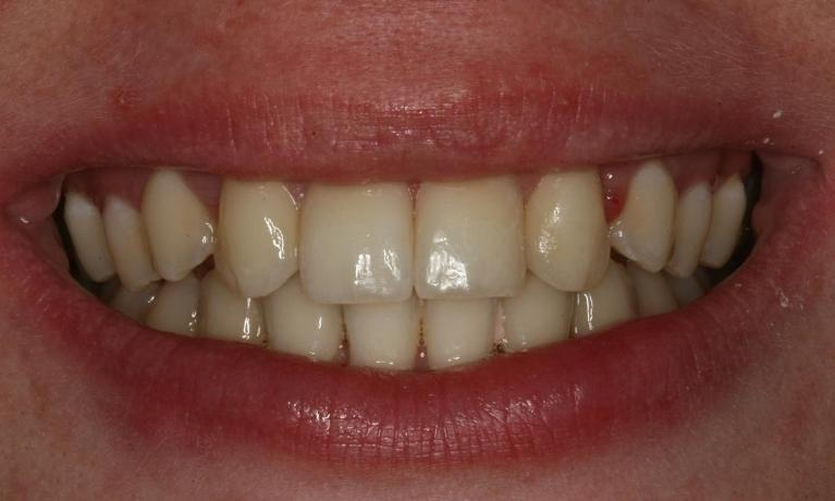 Using-Veneers-to-Give-More-Even-Smile-Before-Image
